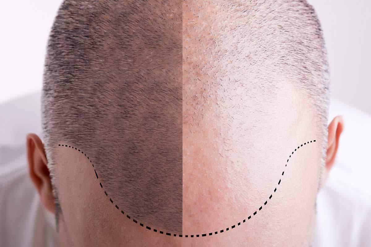 trasplante de pelo - Dr Marco Romeo