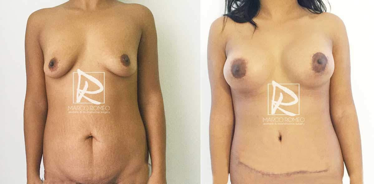 Mommy Makeover Caso 42320 FRENTE - Dr Marco Romeo