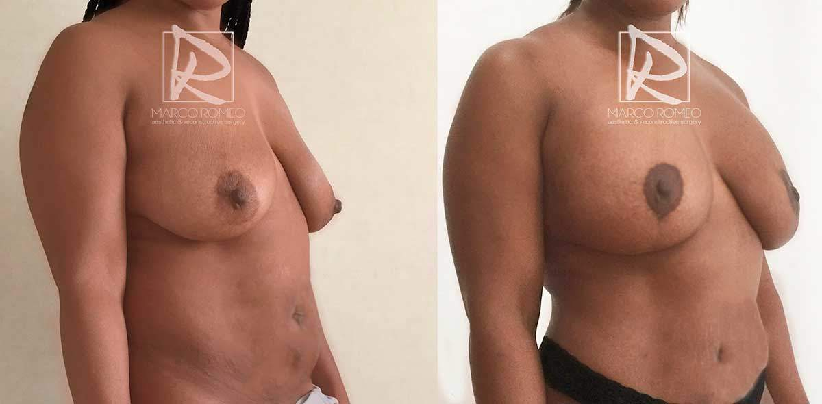 Mommy Makeover - Right angle- Dr Marco Romeo