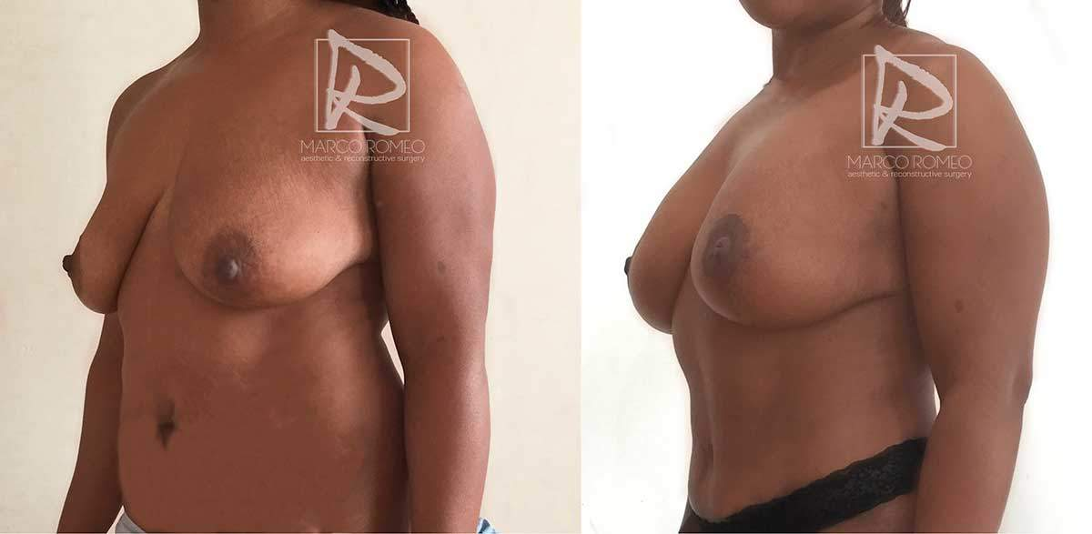 Mommy Makeover - Left angle- Dr Marco Romeo
