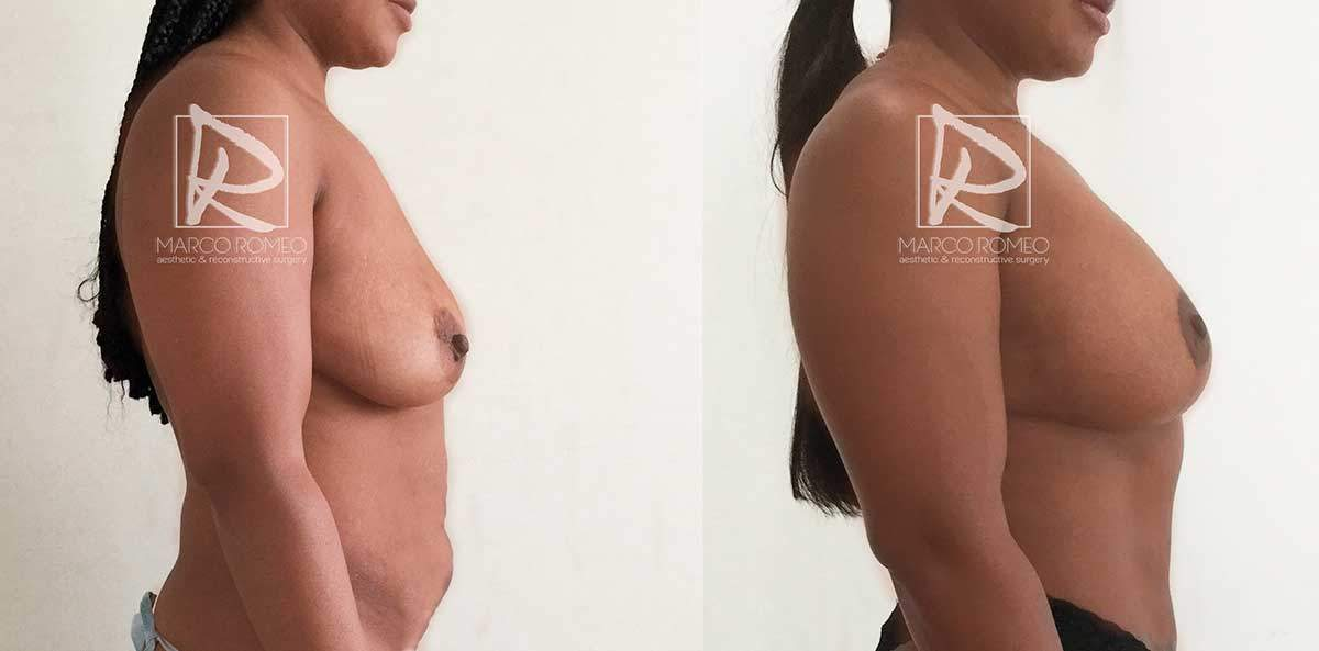 Mommy Makeover - Right side- Dr Marco Romeo