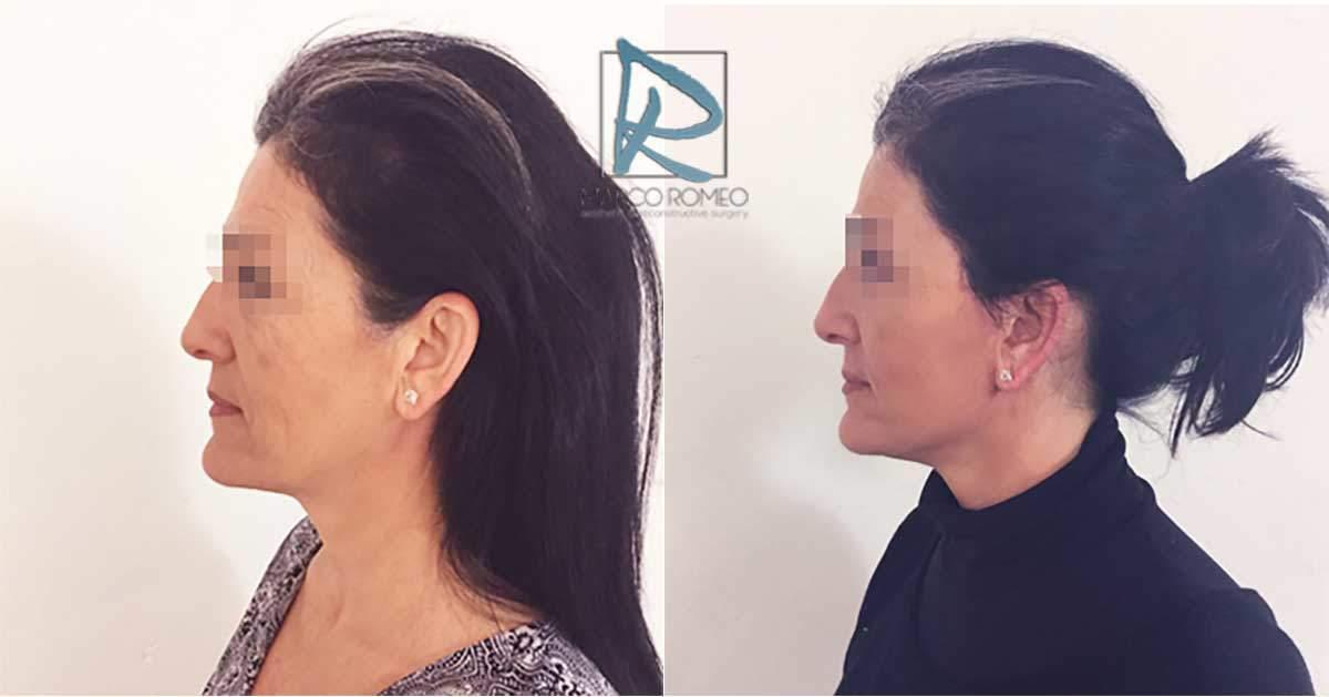 Face Lift - Case 90000 - Left - Dr Marco Romeo