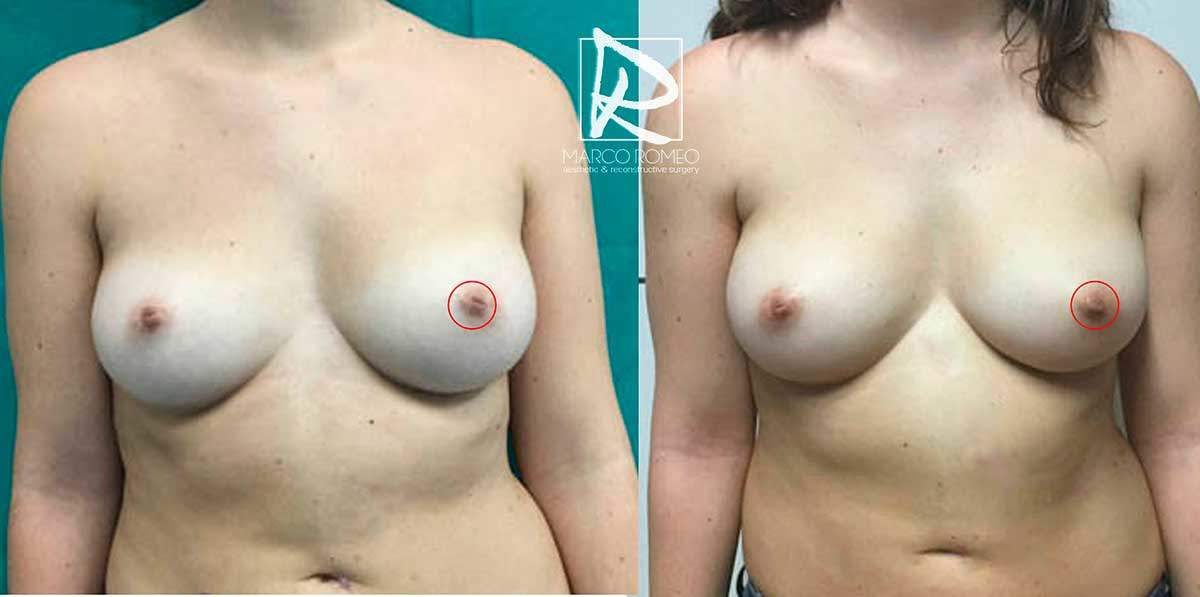 Inverted Nipple Front - Dr Marco Romeo