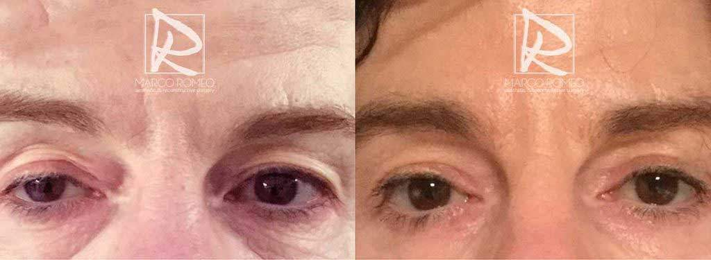 Upper Eyelid Surgery & Unilateral Congenital Ptosis - Open eyes - Dr Marco Romeo