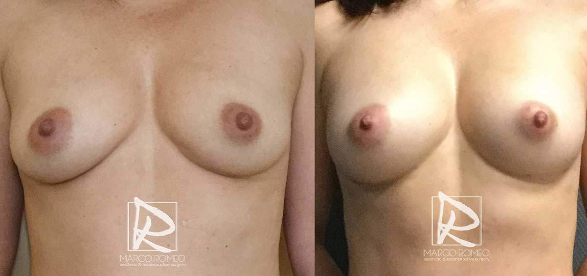 Breast Augmentation - Front - Dr Marco Romeo