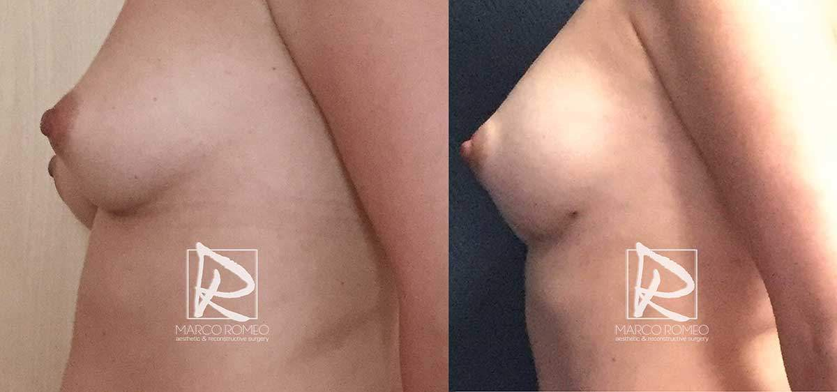 Breast Augmentation - Left Side - Dr Marco Romeo
