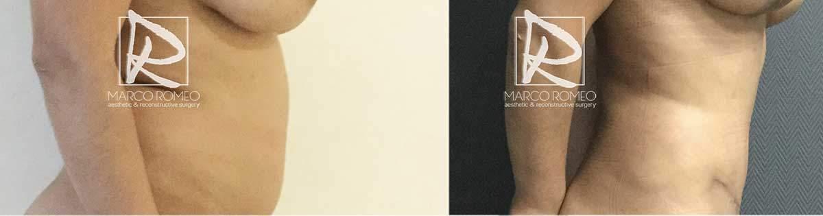 Abdominoplastia-70000-Barriga-Lado-Derecho---Dr-Marco-Romeo