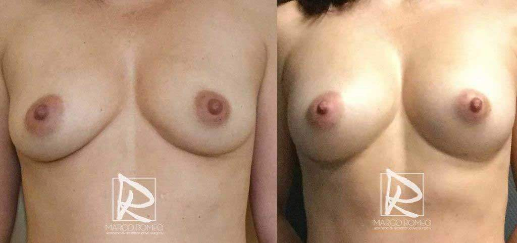 Aumento Mamario sin Implantes - Relleno Graso - Dr Marco Romeo