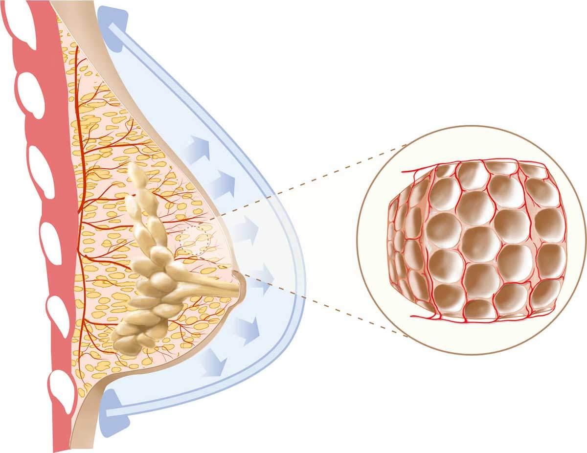 Aumento mamario sin implantes - Dr Marco Romeo