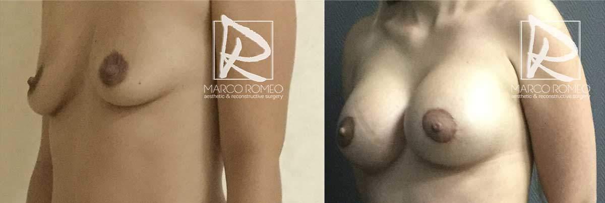 Aumento Mamario 5200 - Ángulo Izquierdo - Dr Marco Romeo