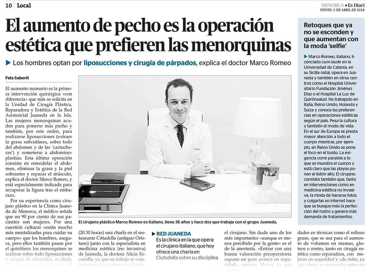 Menorquinas y Aumento Mamario - Entrevista en Diario Menorca - Dr Marco Romeo