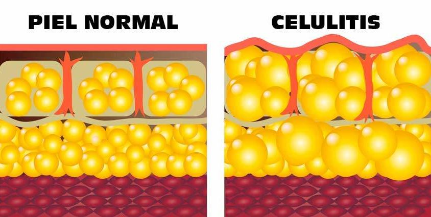 Formación de Celulitis - Dr Marco Romeo