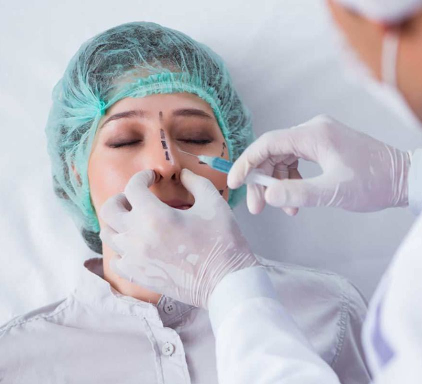 Rinoplastia sin Cirugía - Dr Marco Romeo