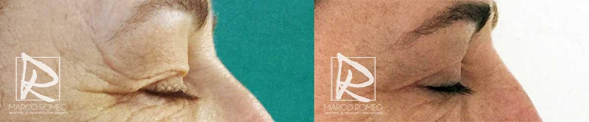 Blefaroplastia - Antes y Después - Lado Derecho - Dr Marco Romeo