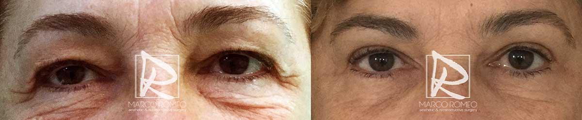 Blefaroplastia - Antes y Después - Frente Ojos Abiertos - Dr Marco Romeo