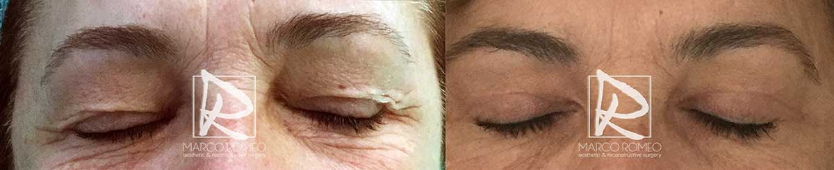 Blefaroplastia - Antes y Después - Frente Ojos Cerrados - Dr Marco Romeo