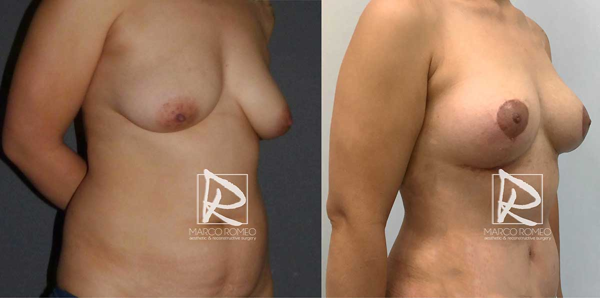 Mommy Makeover - Before and After - Left Angle - Dr Marco Romeo