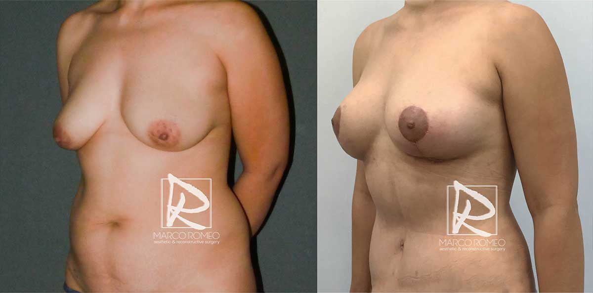 Mommy Makeover - Before and After - Right Angle - Dr Marco Romeo