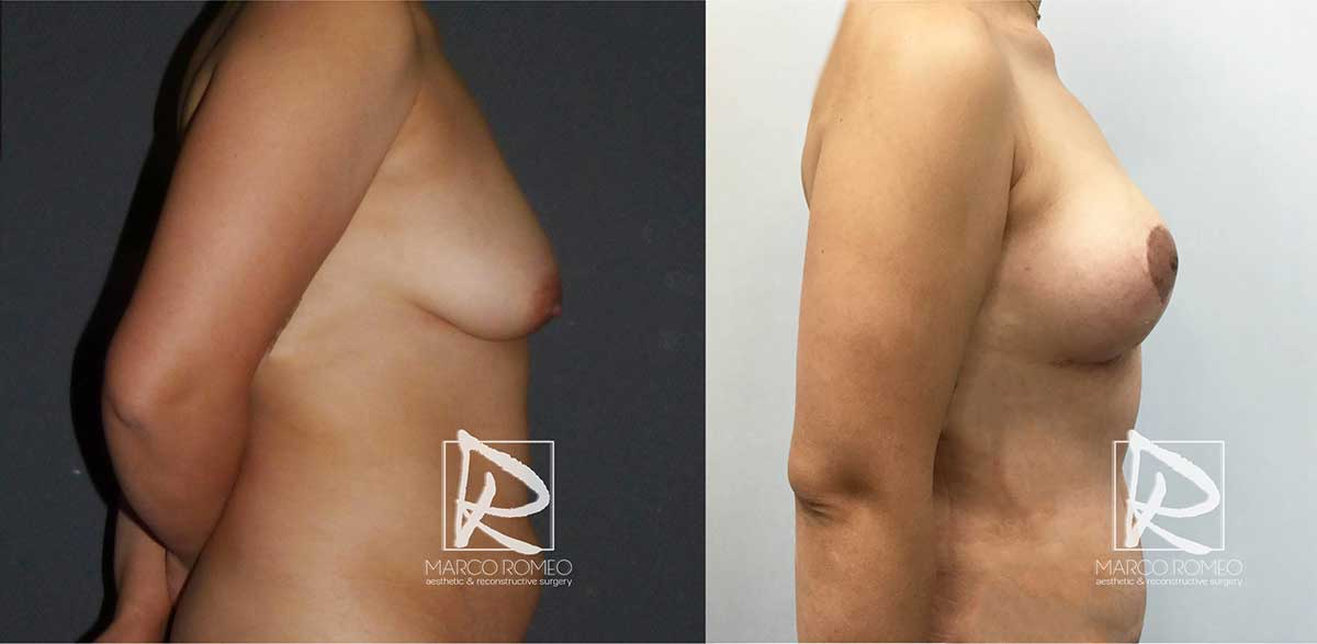 Mommy Makeover - Before and After - Right Side - Dr Marco Romeo
