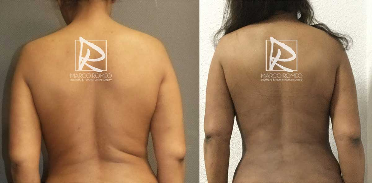 Mommy Makeover - Before and After - Back - Dr Marco Romeo