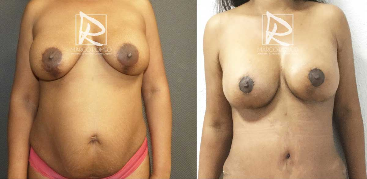 Mommy Makeover - Before and After - Front - Dr Marco Romeo