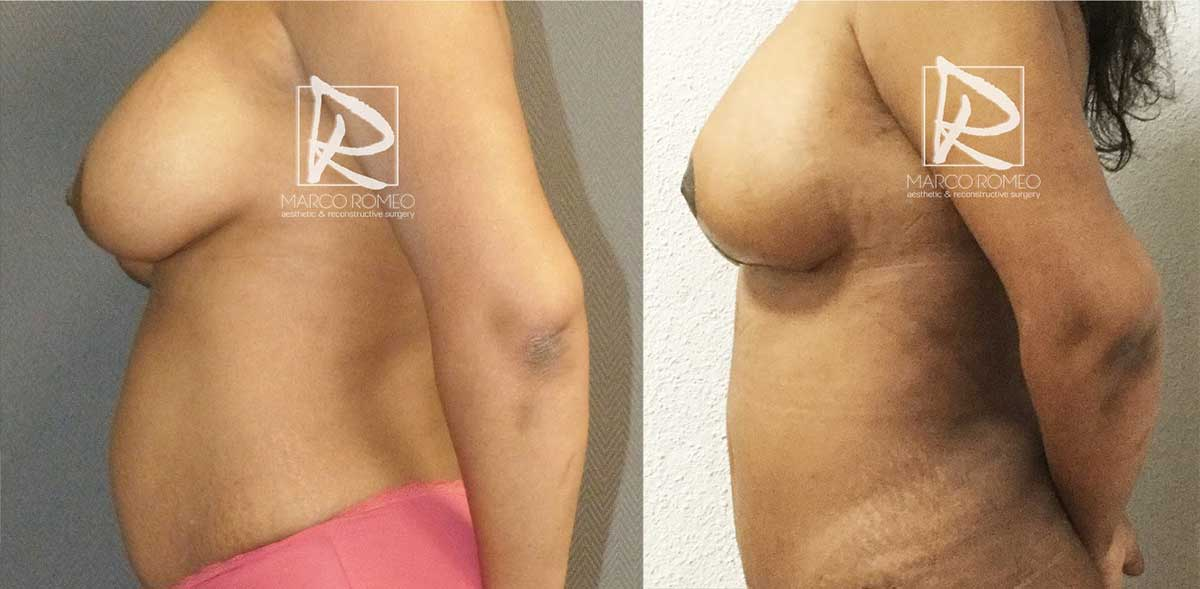 Mommy Makeover - Before and After - Left Side - Dr Marco Romeo