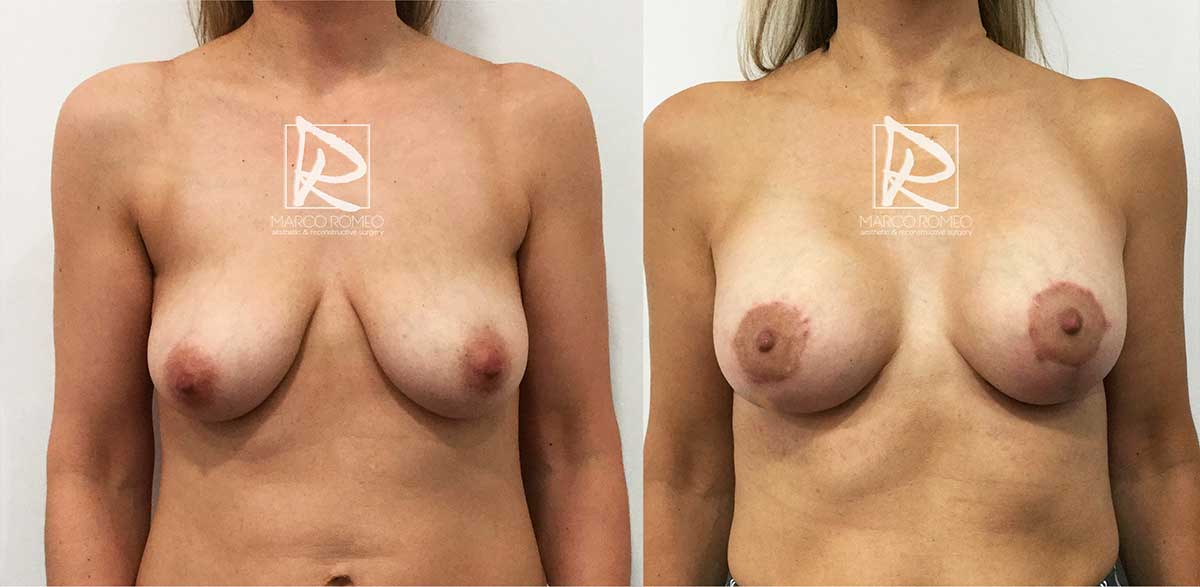 Mastopexia con Implantes 50400 - Frente - Dr Marco Romeo