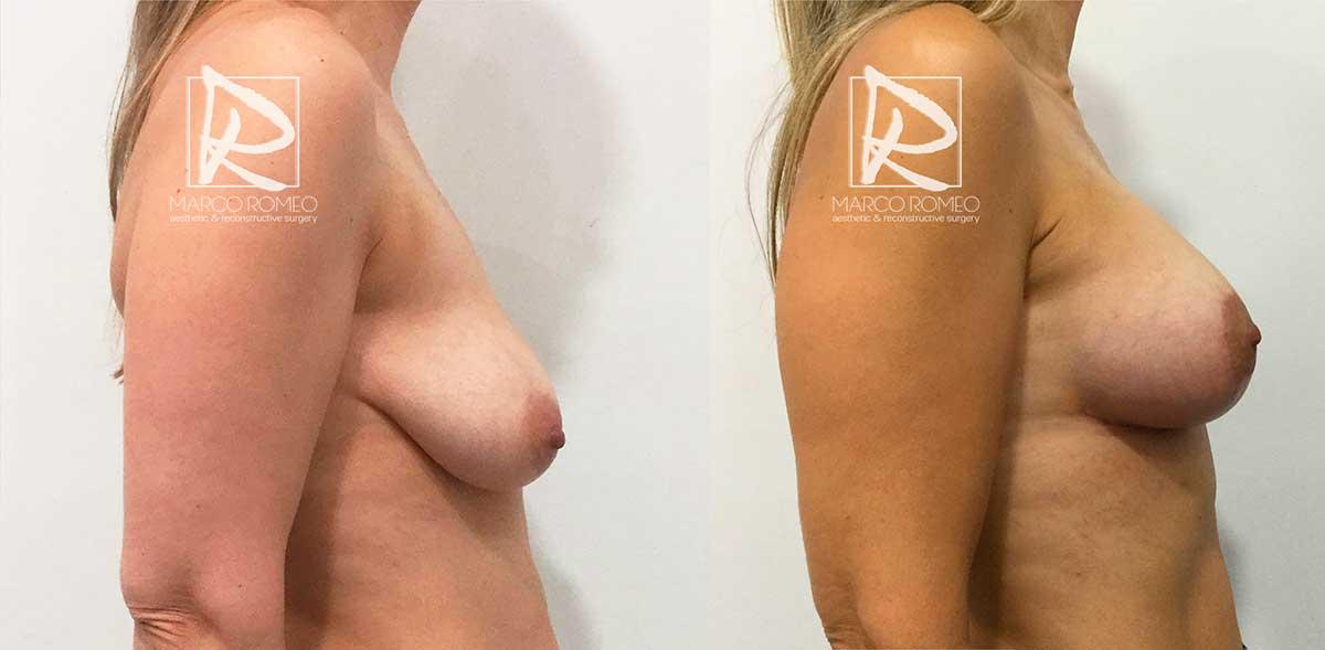Mastopexia con Implantes 50400 - Lado Derecho - Dr Marco Romeo