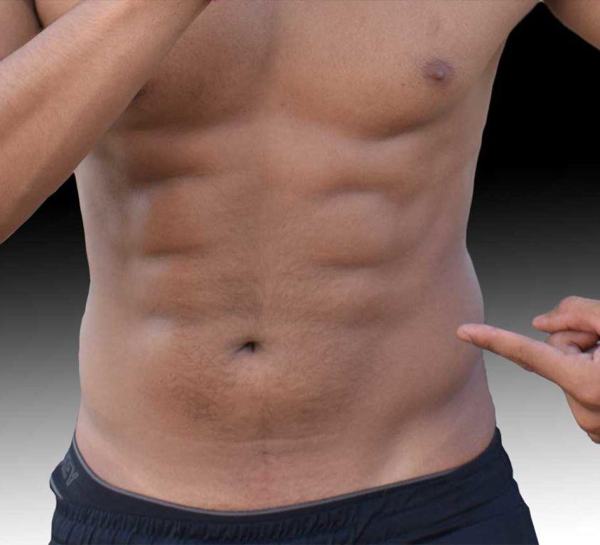 Liposucción Alta Definición - Dr Marco Romeo