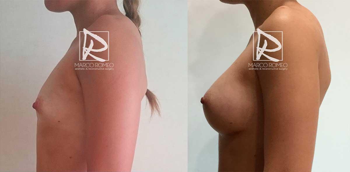 Aumento de mamario lado izquierdo - Dr Marco Romeo