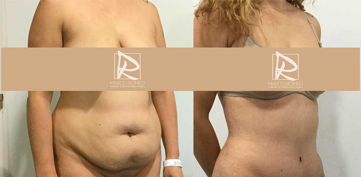 Abdominoplastia Ángulo Derecho - Dr Marco Romeo