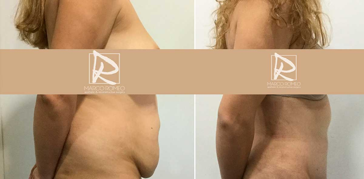 Abdominoplastia Lado Derecho - Dr Marco Romeo