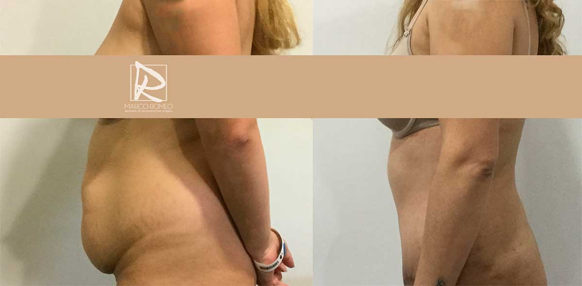 Abdominoplastia Lado Izquierdo - Dr Marco Romeo