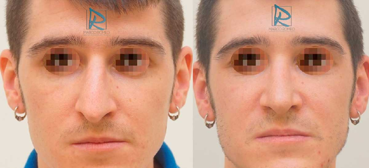 Rinoplastia Ultrasónica - Frente - Antes y Después - Dr Marco Romeo
