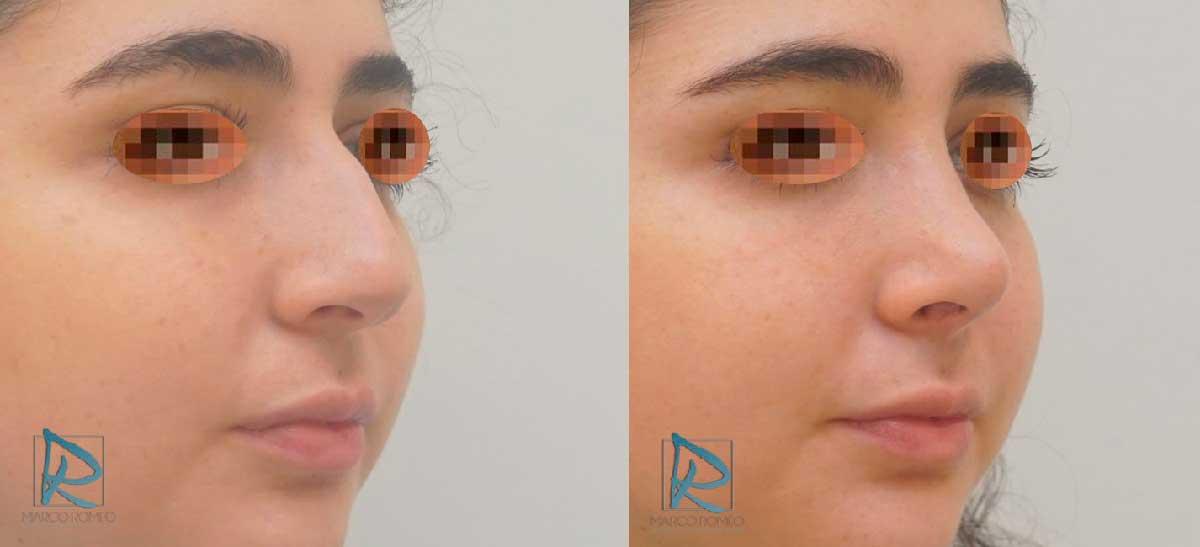 Rinoplastia - Antes y después - Ángulo derecho - Dr Marco Romeo