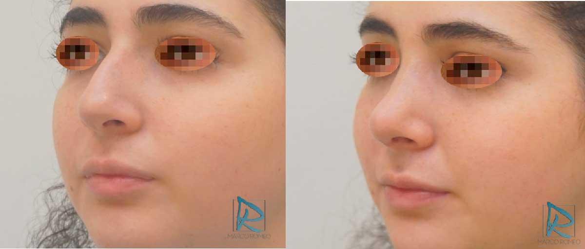 Rinoplastia - Antes y después - Ángulo izquierdo - Dr Marco Romeo