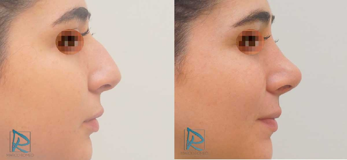 Rinoplastia - Antes y después - Lado derecho - Dr Marco Romeo
