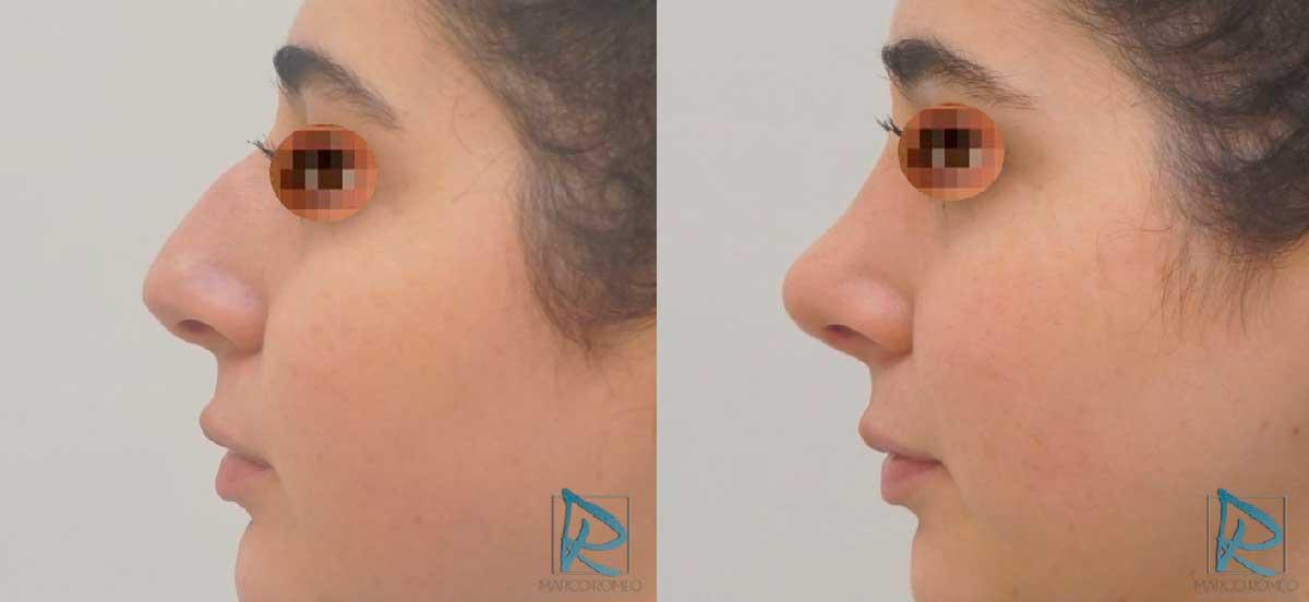 Rinoplastia - Antes y después - Lado izquierdo - Dr Marco Romeo