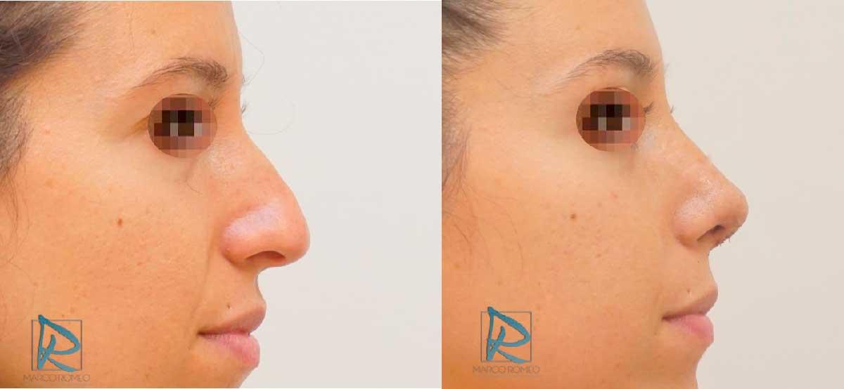 Rinoplastia - Lado derecho -Antes y Después - Dr Marco Romeo