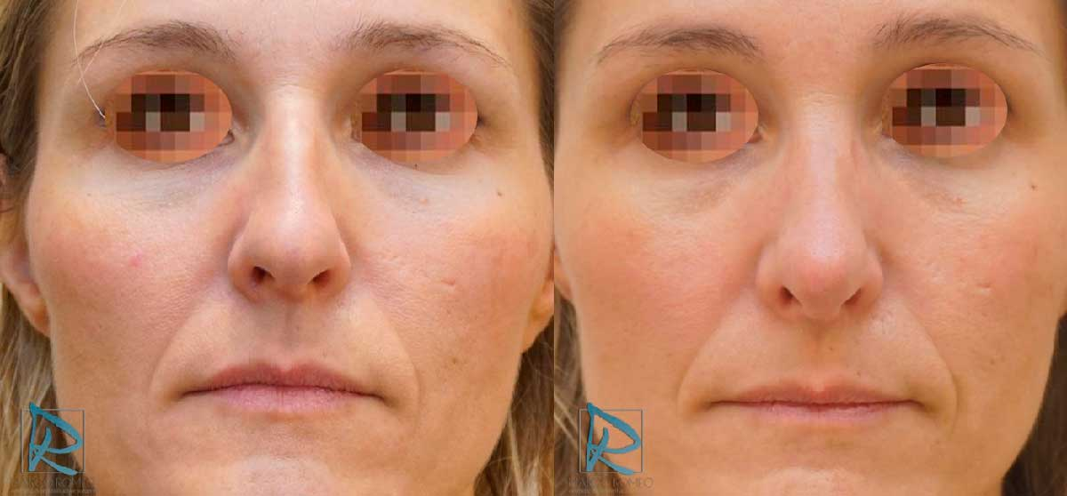 Rinoplastia Ultrasónica - Antes y Después - Frente - Dr Marco Romeo