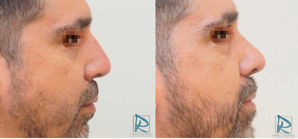 Rinoseptoplastia Ultrasónica - Antes y Después - Lado Derecho - Dr Marco Romeo
