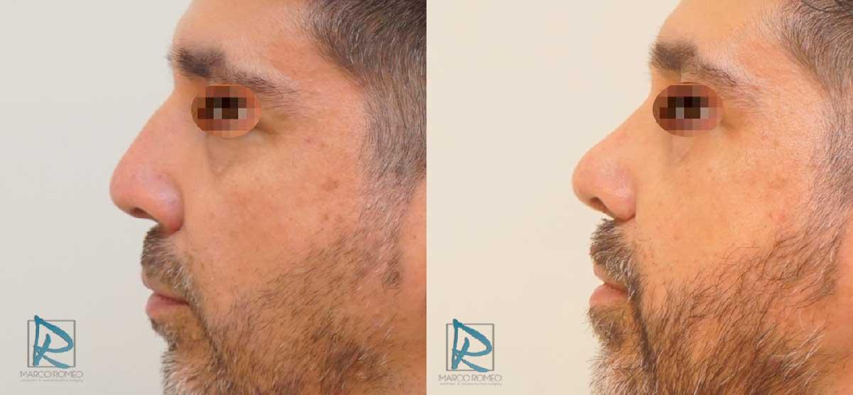 Rinoseptoplastia Ultrasónica - Antes y Después - Lado Izquierdo - Dr Marco Romeo